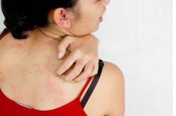 Кожный зуд при окислительном стрессе