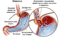 Рефлюкс желудка из-за булимии
