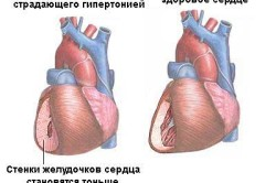 Гипертония - осложнение болезни Паркинсона