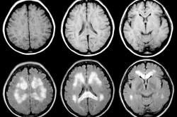 МРТ головного мозга при заболевании Паркинсона