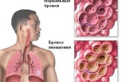Бронхопневмония - осложнение болезни Паркинсона